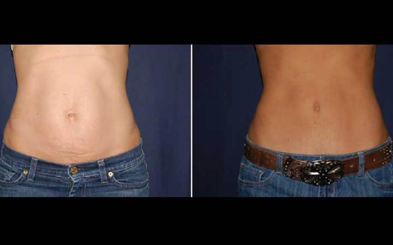 270 Tummy Tuck Surgery Results