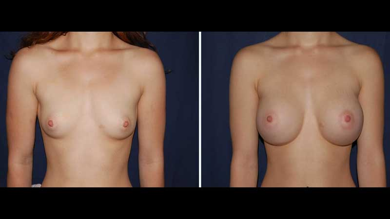 Breast Augmentation Procedure 24