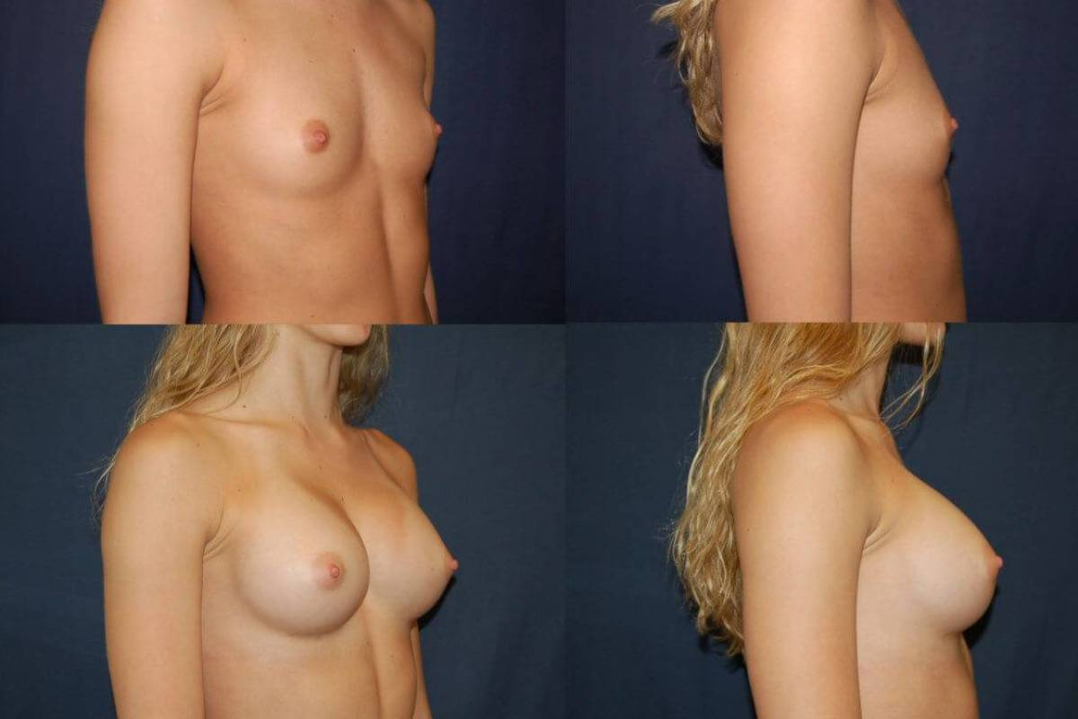 Gummy Bear Breast Implants - Before and After