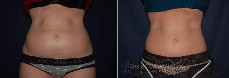 Liposuction before and after 15