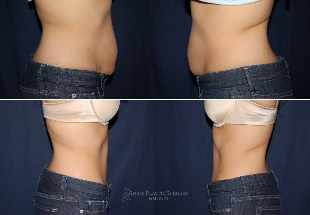 Tummy tuck before and after 48