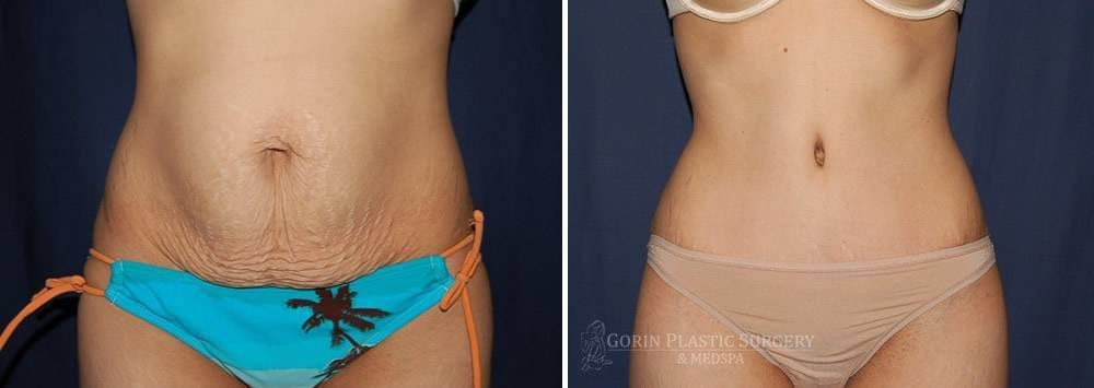 Tummy tuck before and after 46