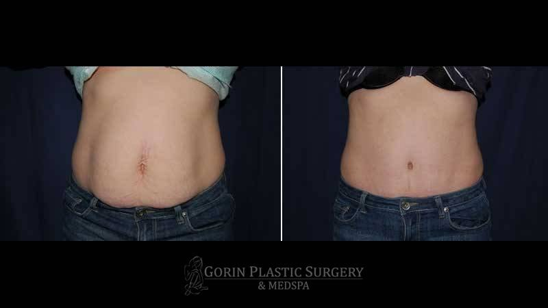 Tummy tuck before and after 44