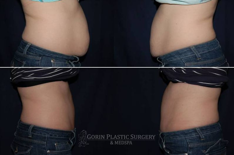 Tummy tuck before and after 42