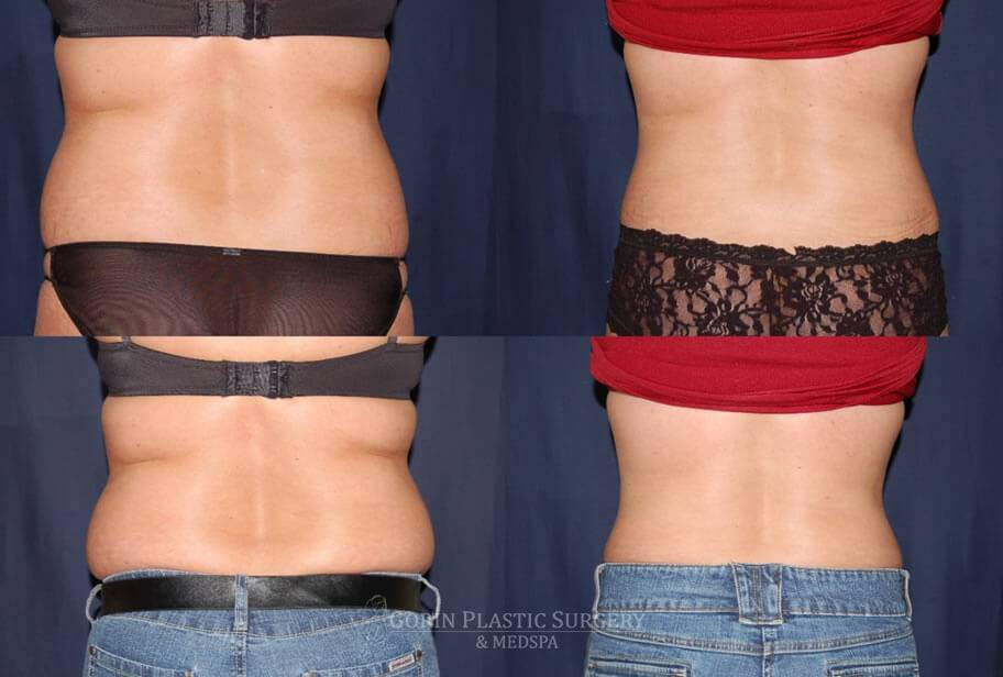 Tummy tuck before and after 36
