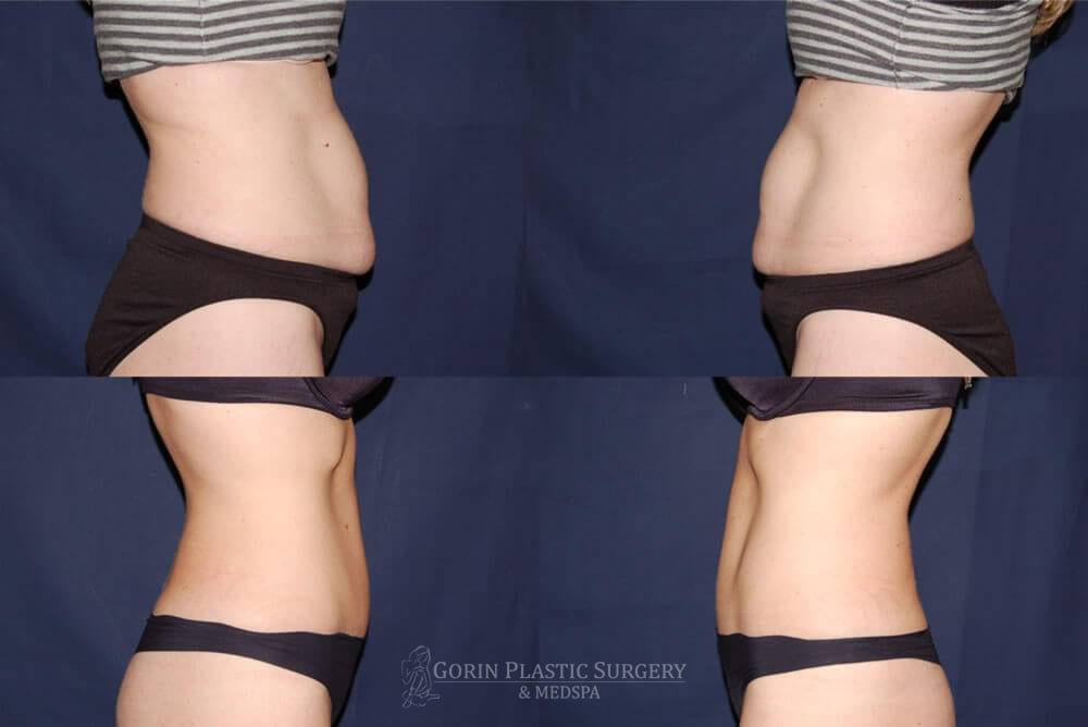 Tummy tuck before and after 23