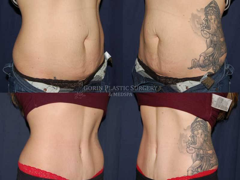 Tummy tuck before and after 75