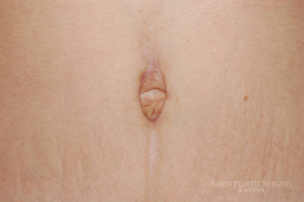 Tummy tuck before and after belly button 2