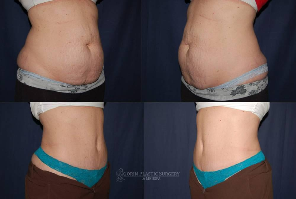 Tummy tuck before and after 55