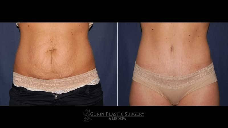 Tummy tuck before and after 54