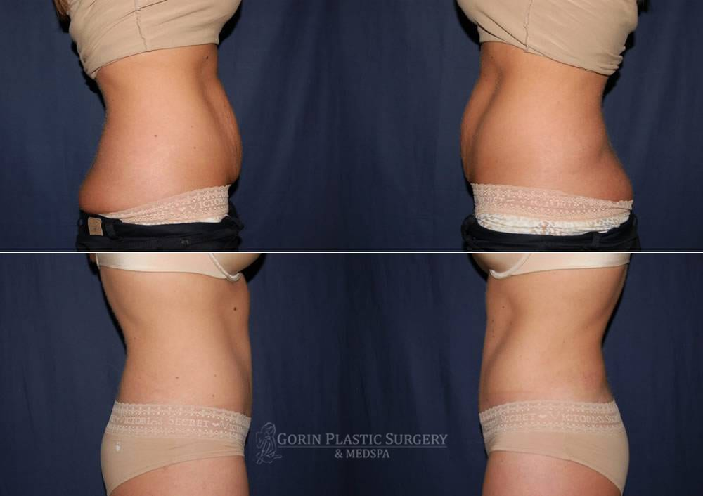 Tummy tuck before and after 53