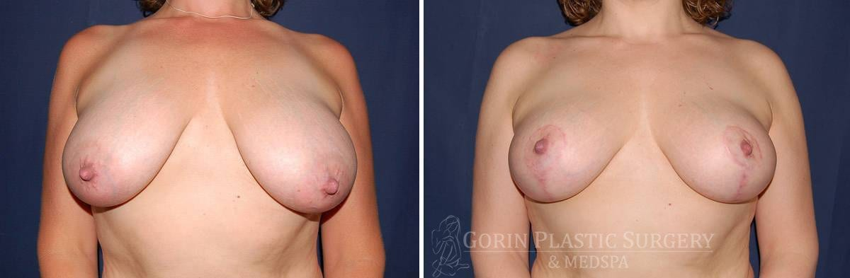 breast lift with augmentation before and after front view 21