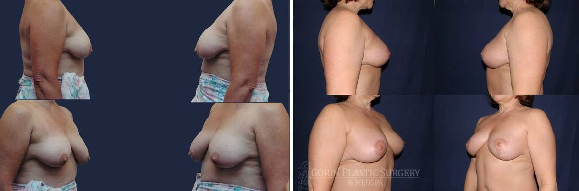 breast lift with augmentation before and after oblique view 62