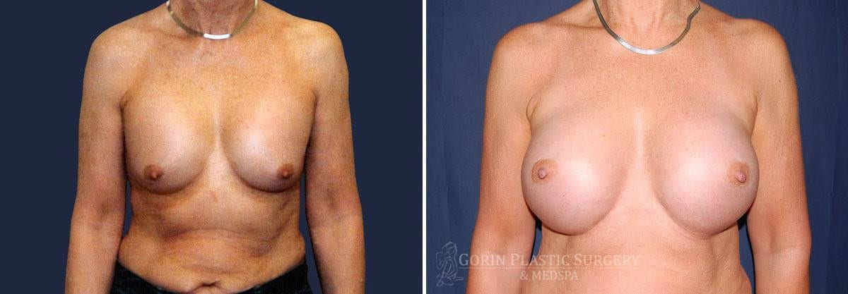breast implants before and after front view 60