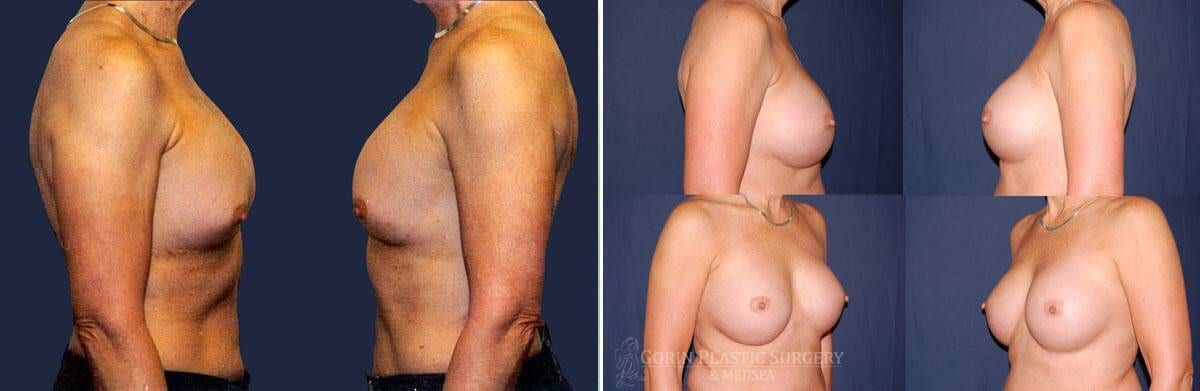 breast implants before and after oblique view 33
