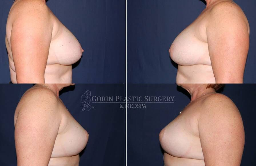breast implants with lift before and after side view 34