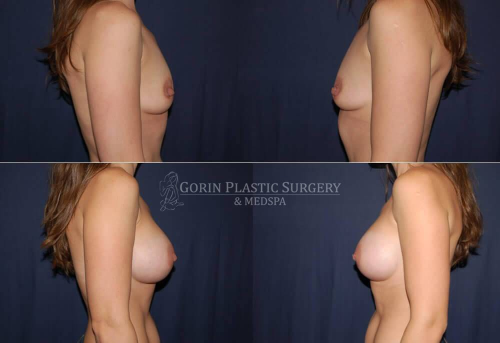 breast augmentation before and after side view 29