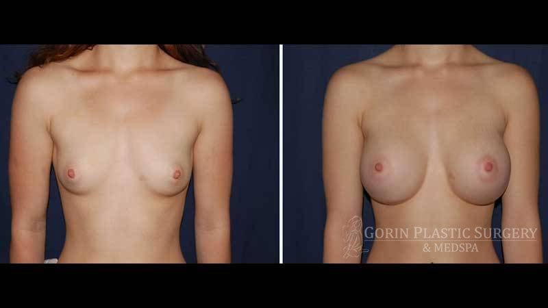 breast augmentation before and after front view 20