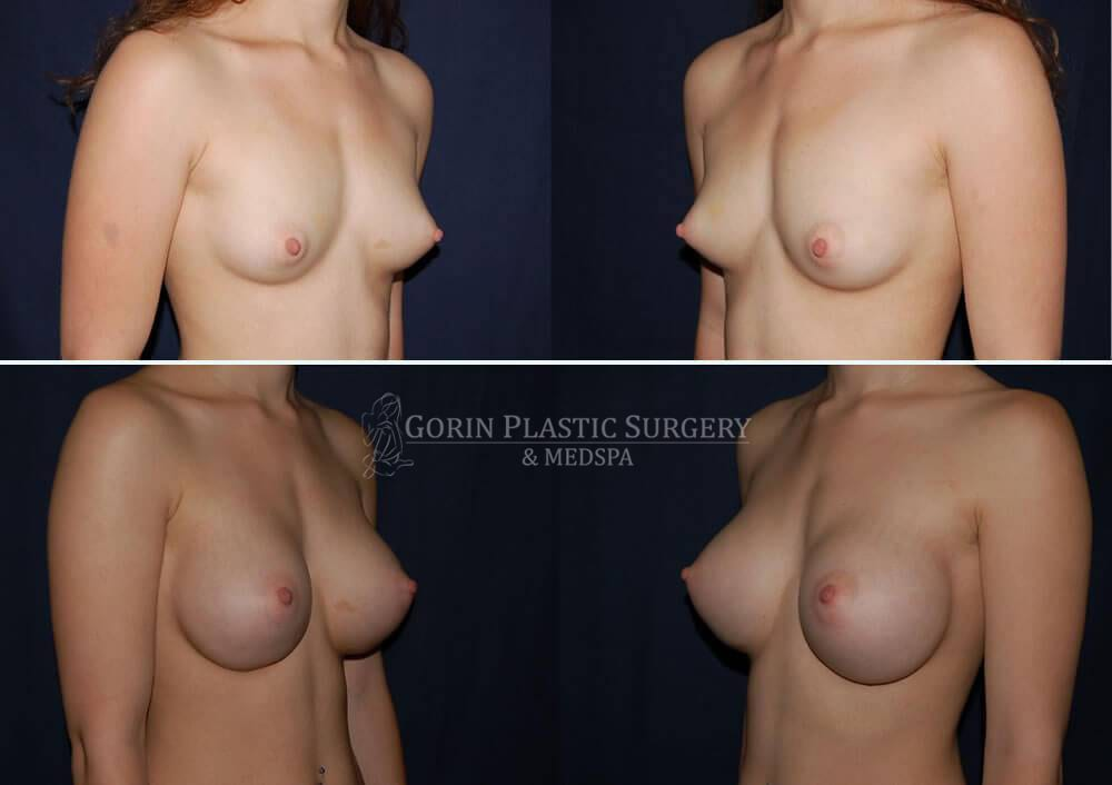 breast augmentation before and after oblique view 18