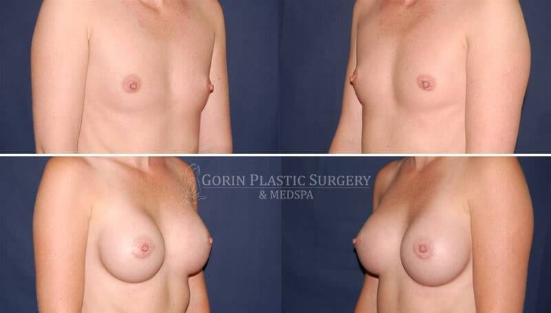 breast augmentation before and after oblique view 12