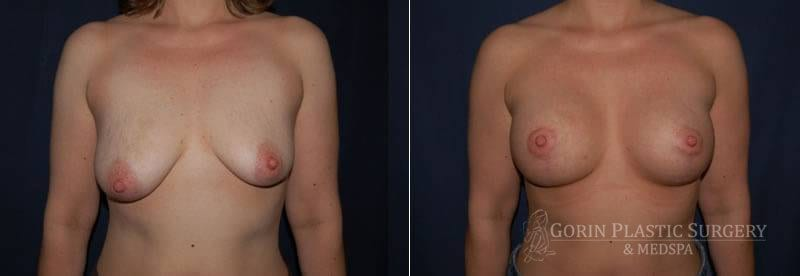 breast lift with augmentation before and after 8