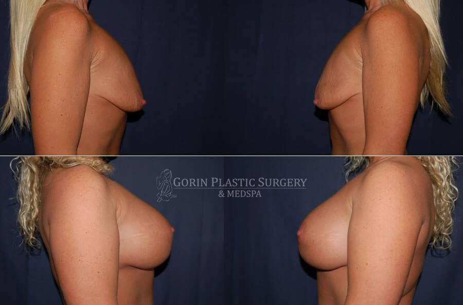 breast augmentation before and after side view 43