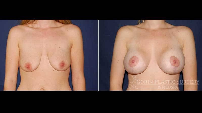 breast augmentation before and after front view 41