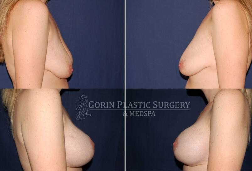 breast augmentation before and after side view 41