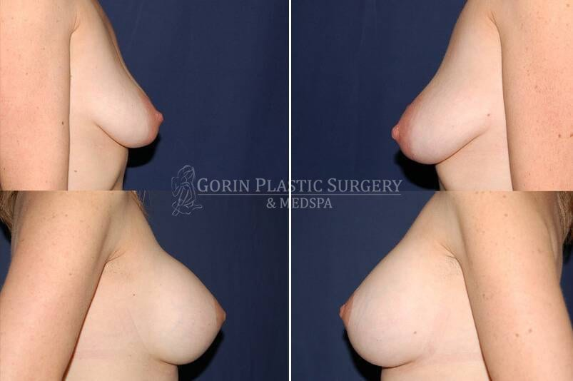 breast augmentation before and after side view 40