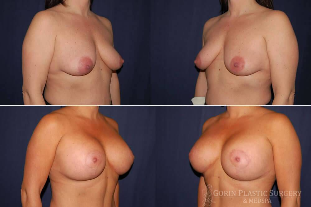 breast augmentation with lift before and after oblique view 5