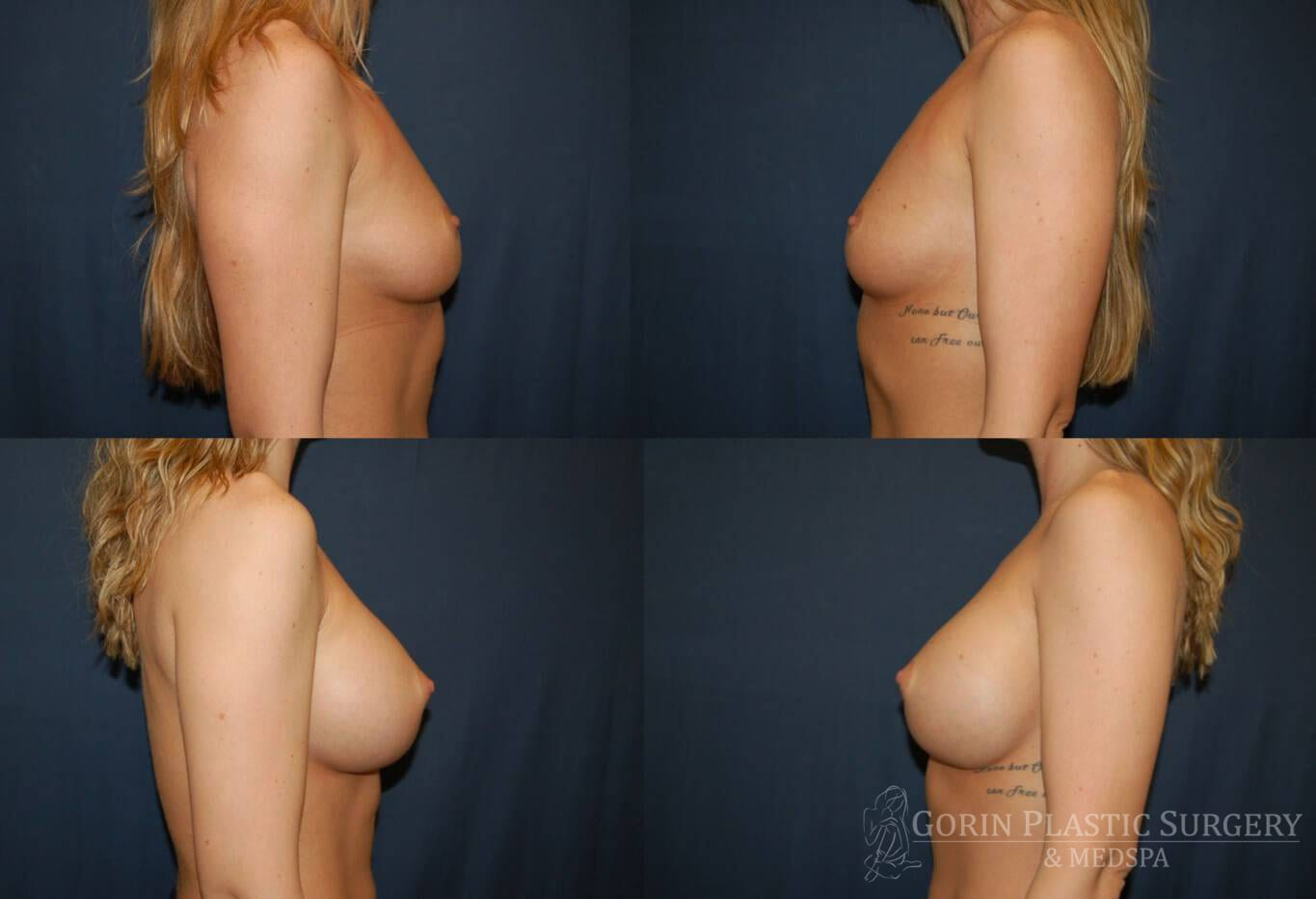 breast aug before and after side view 4