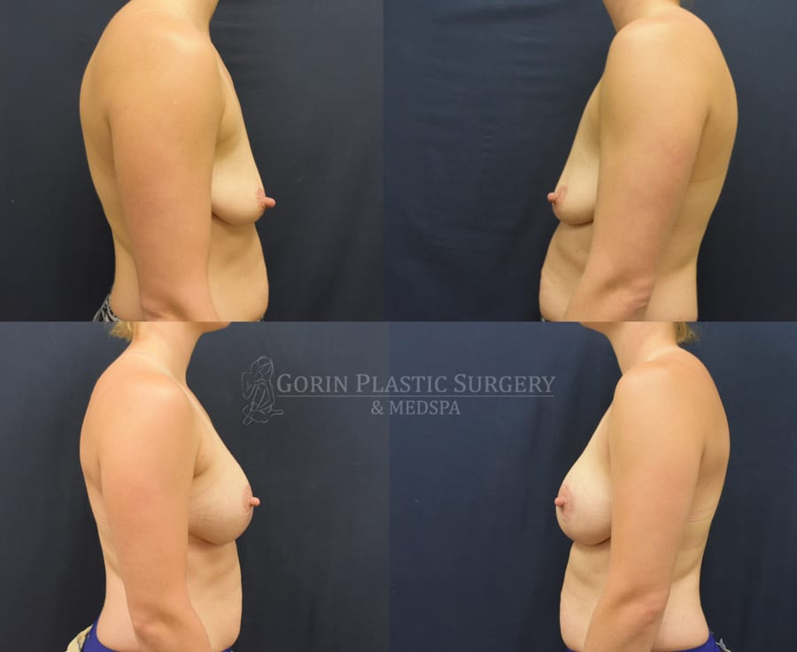 Before and after breast aug