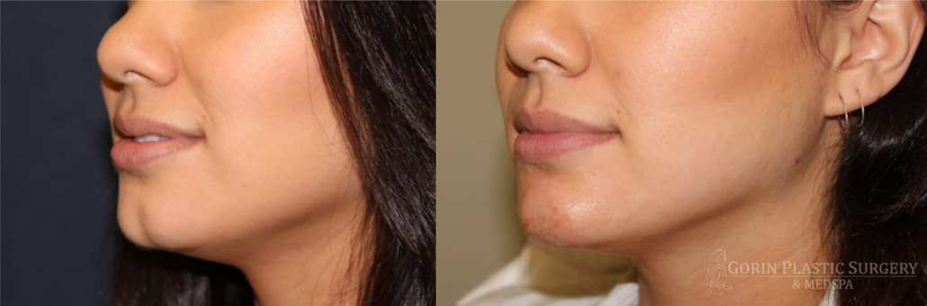 Juvederm treatment on cleft chin beofre and after from Gorin Plastic Surgery and MedSpa