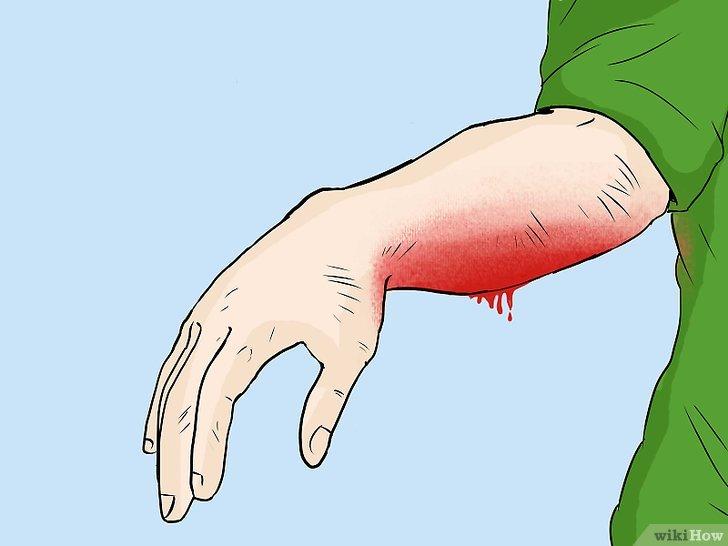 come trattare un'abrasione