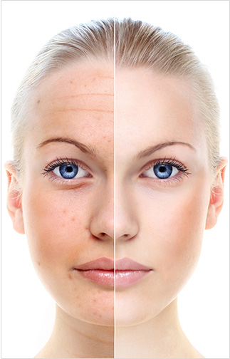 3 MOST EFFECTIVE WAYS TO LIGHTEN ACNE SCARS AND DARK SPOTS