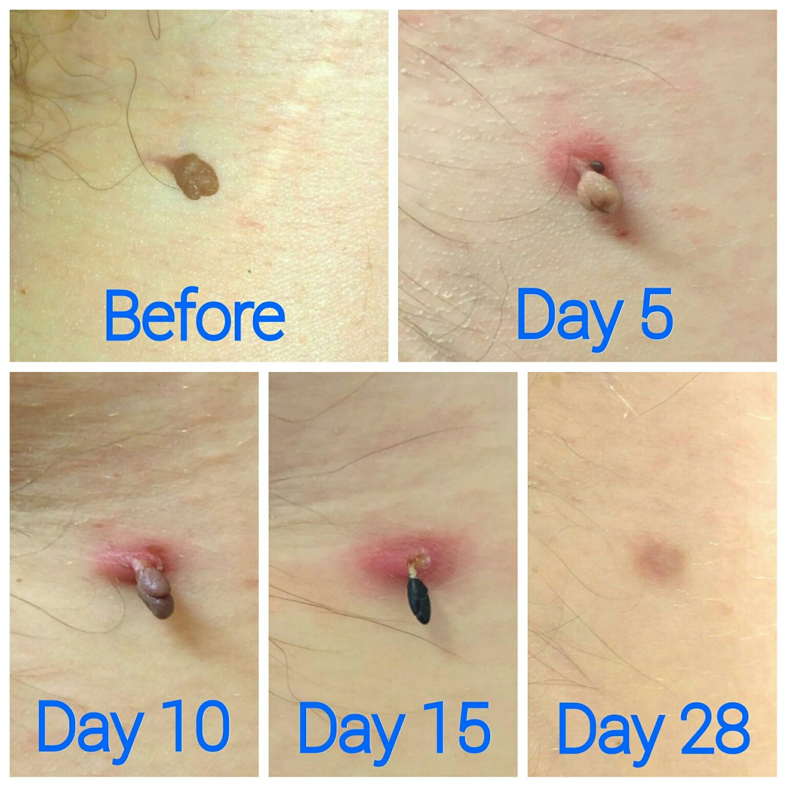 AGE SPOT AND SKIN TAG REMOVAL
