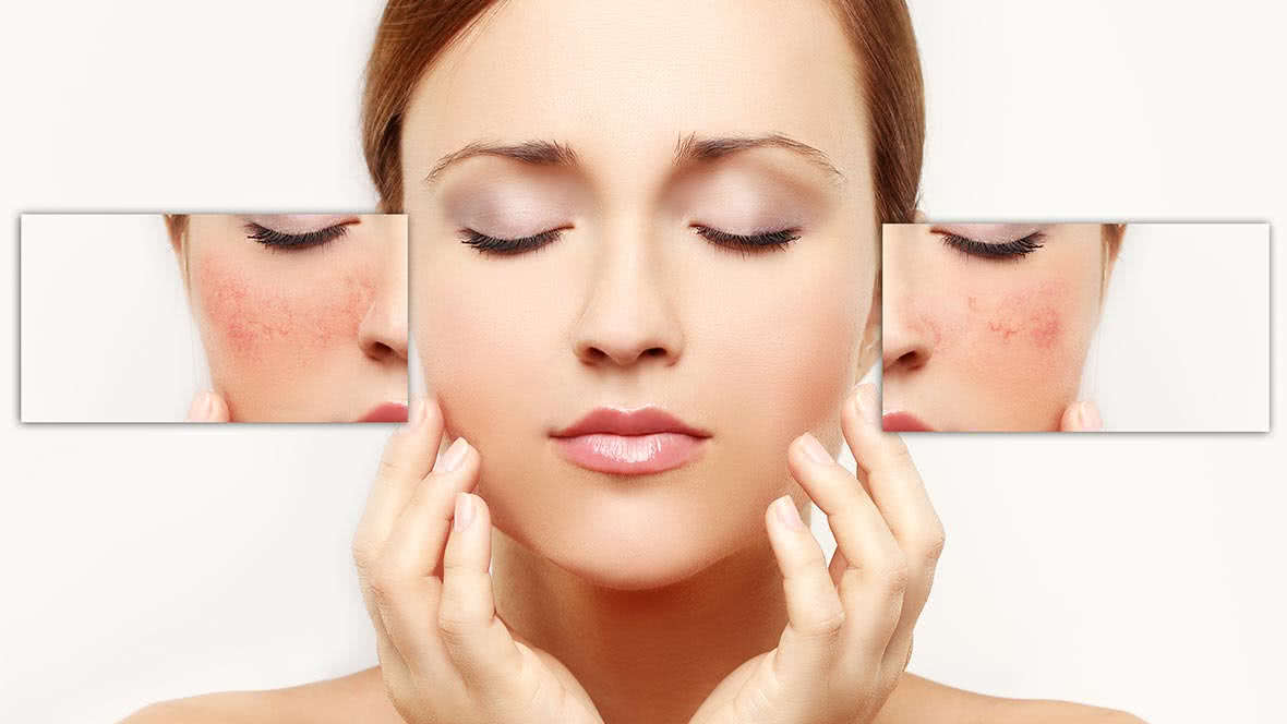 4 Tips You NEED to Know BEFORE Getting an Acid Peel!