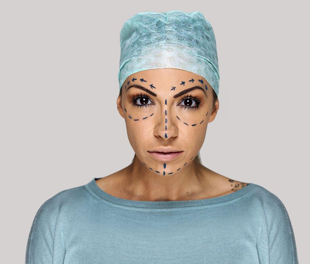 Negligencia cirugía estética