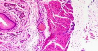tecido epitelial foto
