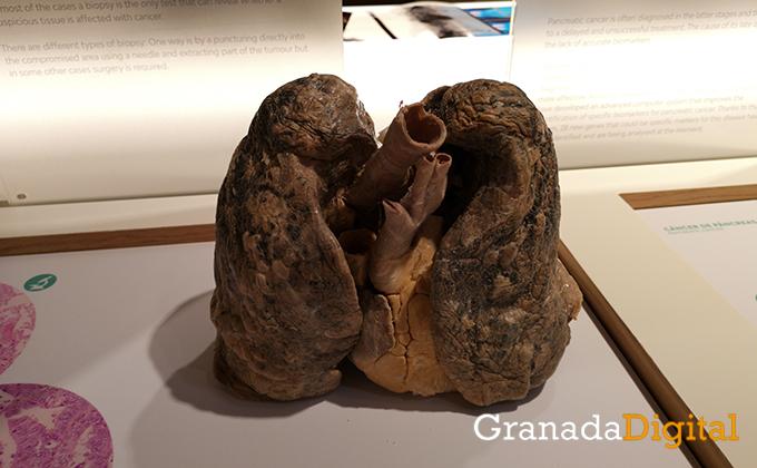 la-madraza-ugr-exposicion-cancer.jpg
