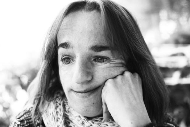Vicky tiene una enfermedad rara, el síndrome de Treacher Collins