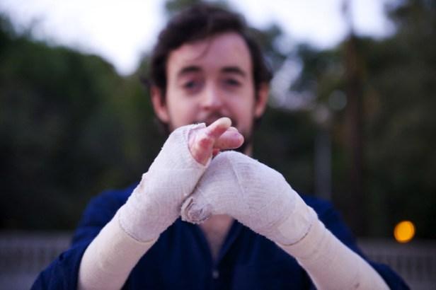 Íñigo de Ibarrondo tiene una enfermedad rara llamada epidermólisis
