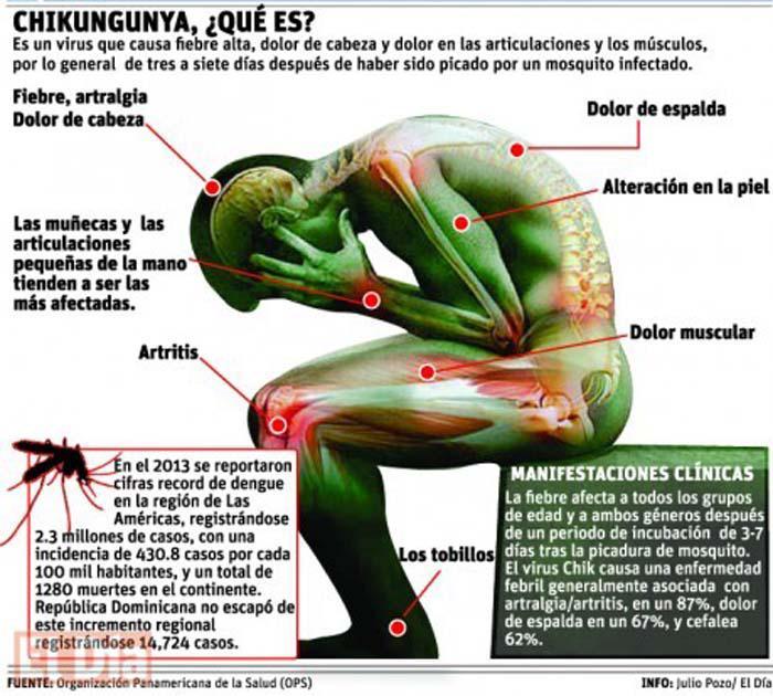 VIRUS DEL CHIKUNGUNYA