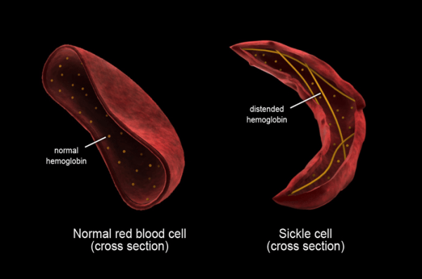 research page american sickle cell anemia association - 700×463