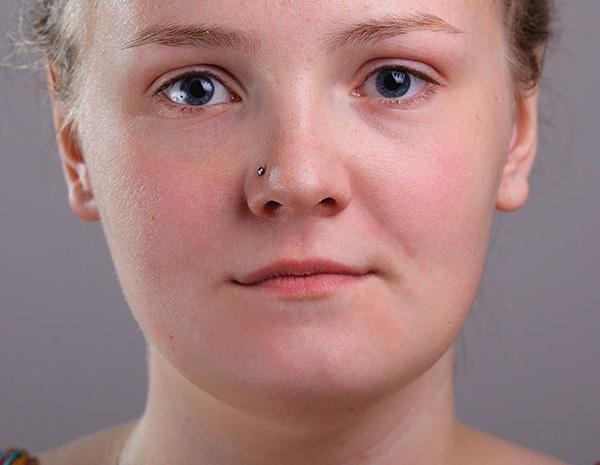 photoshop-acne-healed
