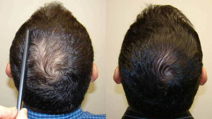 Great Hair Transplants Patient Brian Page Dr Brett Bolton