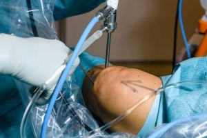 Surgery vs Physiotherapy for Osteoarthritis and Meniscal Tear