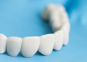 What You Need to Know About Immediate Dentures