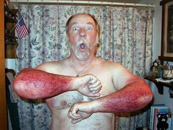 effects of poison ivy