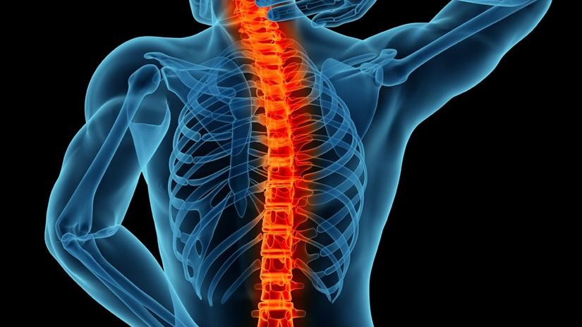 Spine Tumor Surgery Cost in India